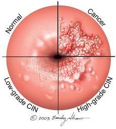 lette celleforandringer